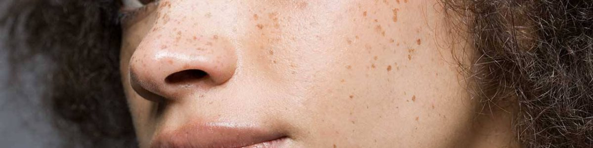 How to match your make-up with your freckles