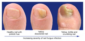 Fungal Nail Infection stages